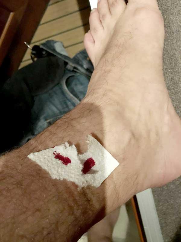 Die Mückenstiche haben teilweise angefangen zu bluten